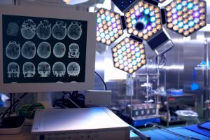 Operating room with brain images on screen
